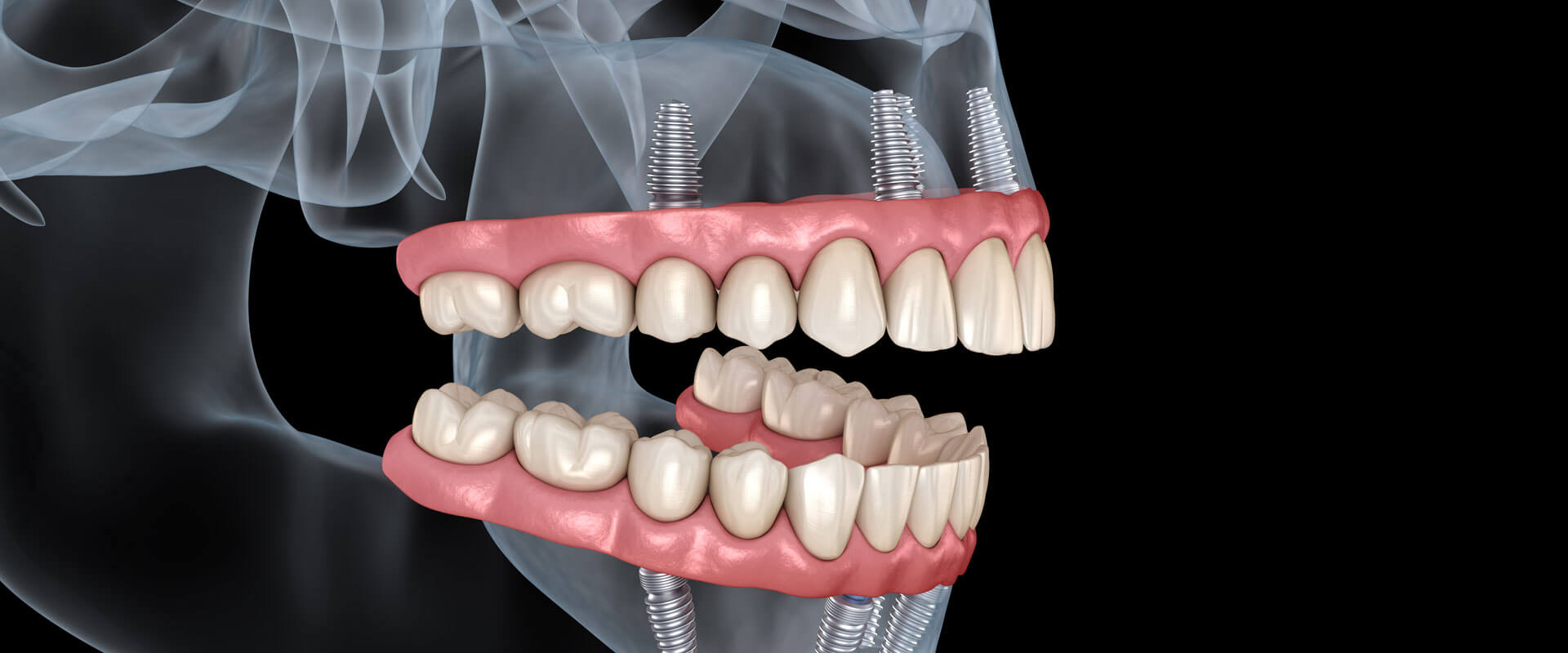 Closeup of a dental X-Ray graphic